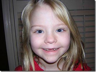 Carie dei denti da latte vanno curate