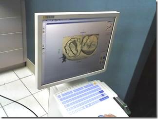 record perprotesi disegnate al computer