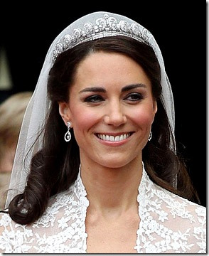 denti di kate middleton