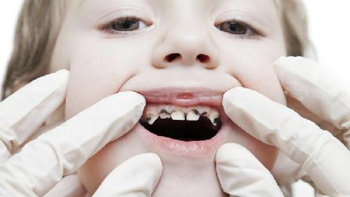 Bimbi con denti cariati colpa delle mamme ?